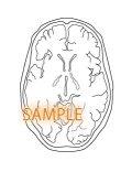 CT図ー脳