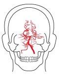 右椎骨動脈