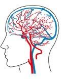 脳内血管図