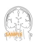 CT図-脳